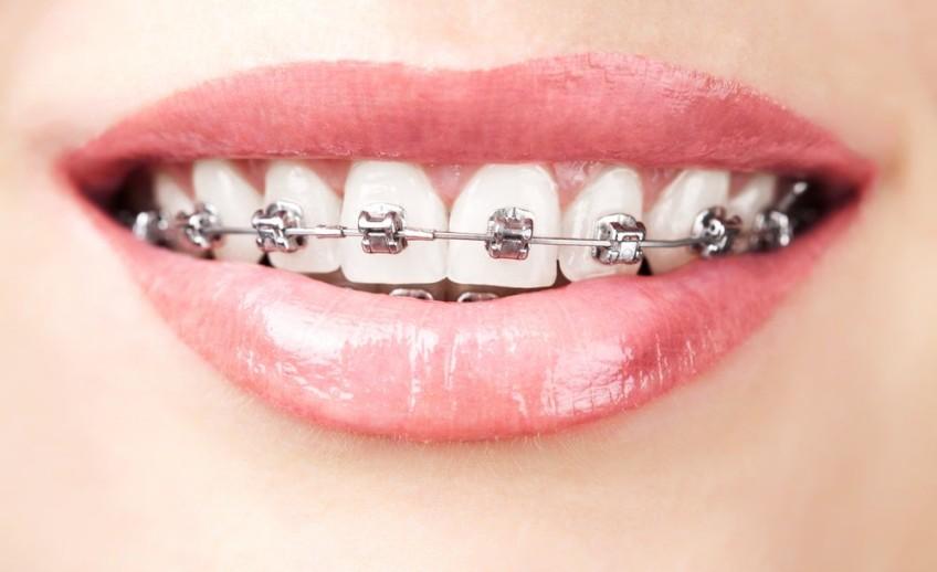 aparelho-fixo-dentes